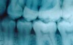 tander-rontgenbild
